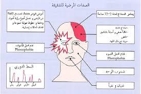 صورة اعراض مرض الشقيقة , خطورة الصداع النصفي