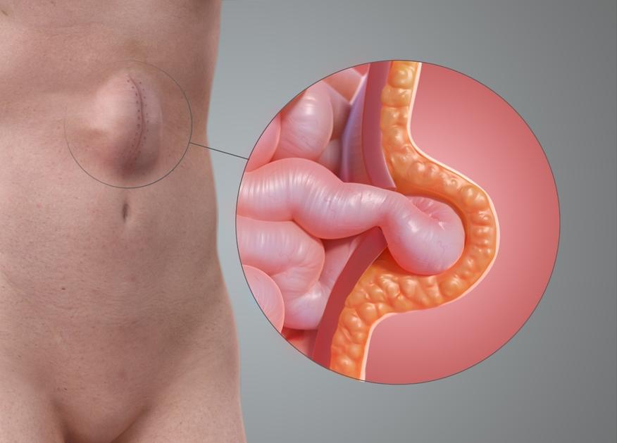 صورة علاج الفتق الاربي , تعرف على اسباب و علاج الفتق الاربى