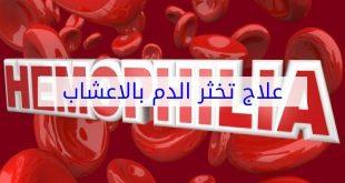 علاج تخثر الدم بالاعشاب , الطب البديل فى علاج تجلط الدم