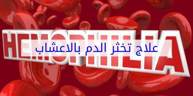 صورة علاج تخثر الدم بالاعشاب , الطب البديل فى علاج تجلط الدم