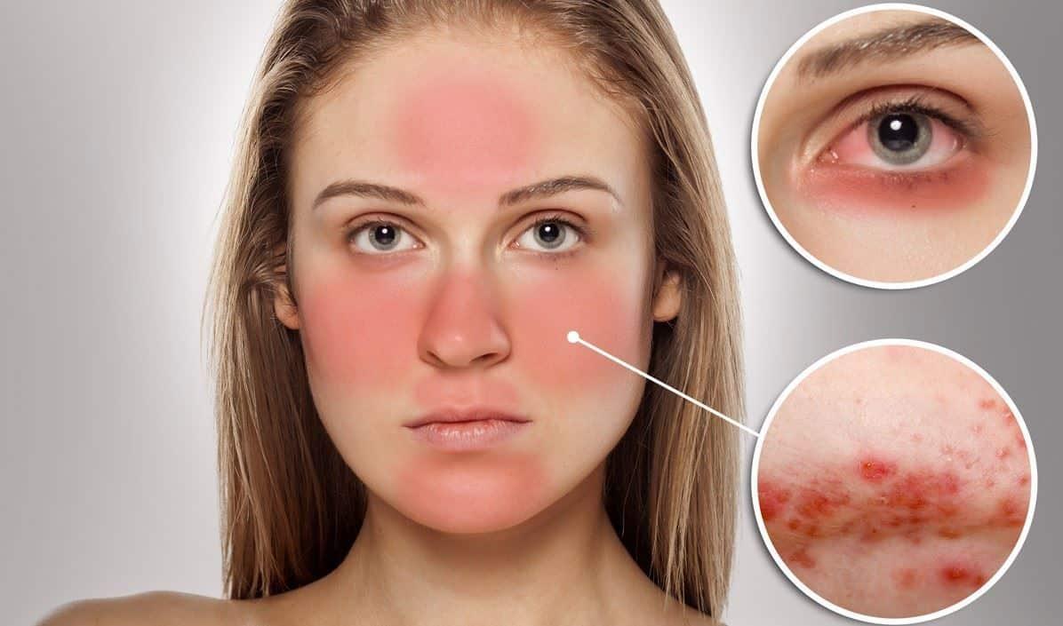 صورة حساسية الوجه وعلاجها , بعض الطرق الطبيعية تعالج حساسية البشرة
