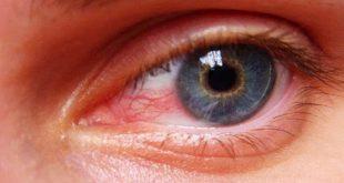 احمرار العين بعد النوم , احمرار العين له اسباب تعرف عليها