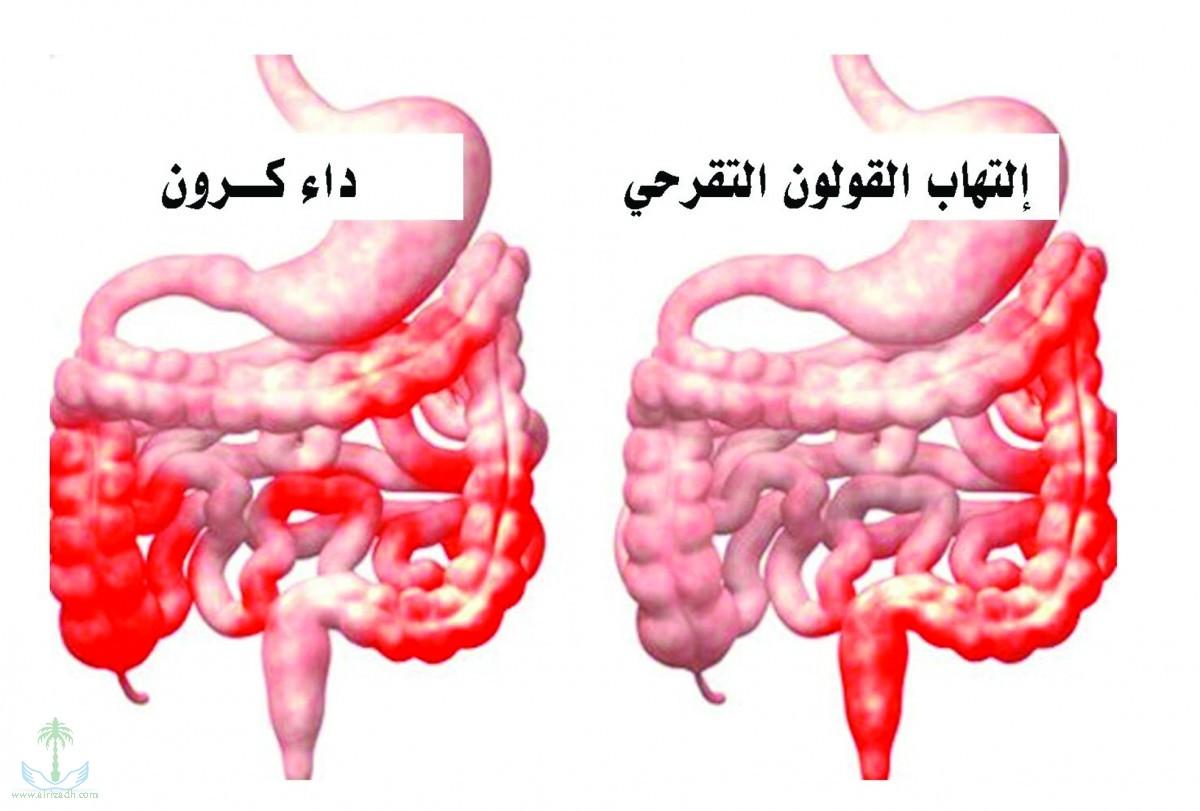 صورة اعراض القولون التقرحي , مرض اسبابة شبة غير معروفة
