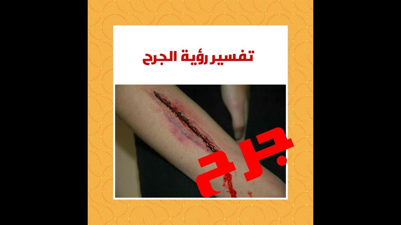 صورة الجرح في المنام , الجرح هو الم و قلق لصاحبة