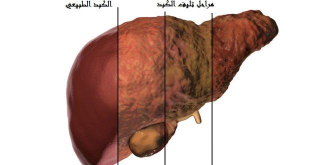 صور اسباب تليف الكبد , علاج و اعرض تليف الكبد