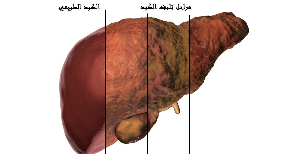 صورة اسباب تليف الكبد , علاج و اعرض تليف الكبد