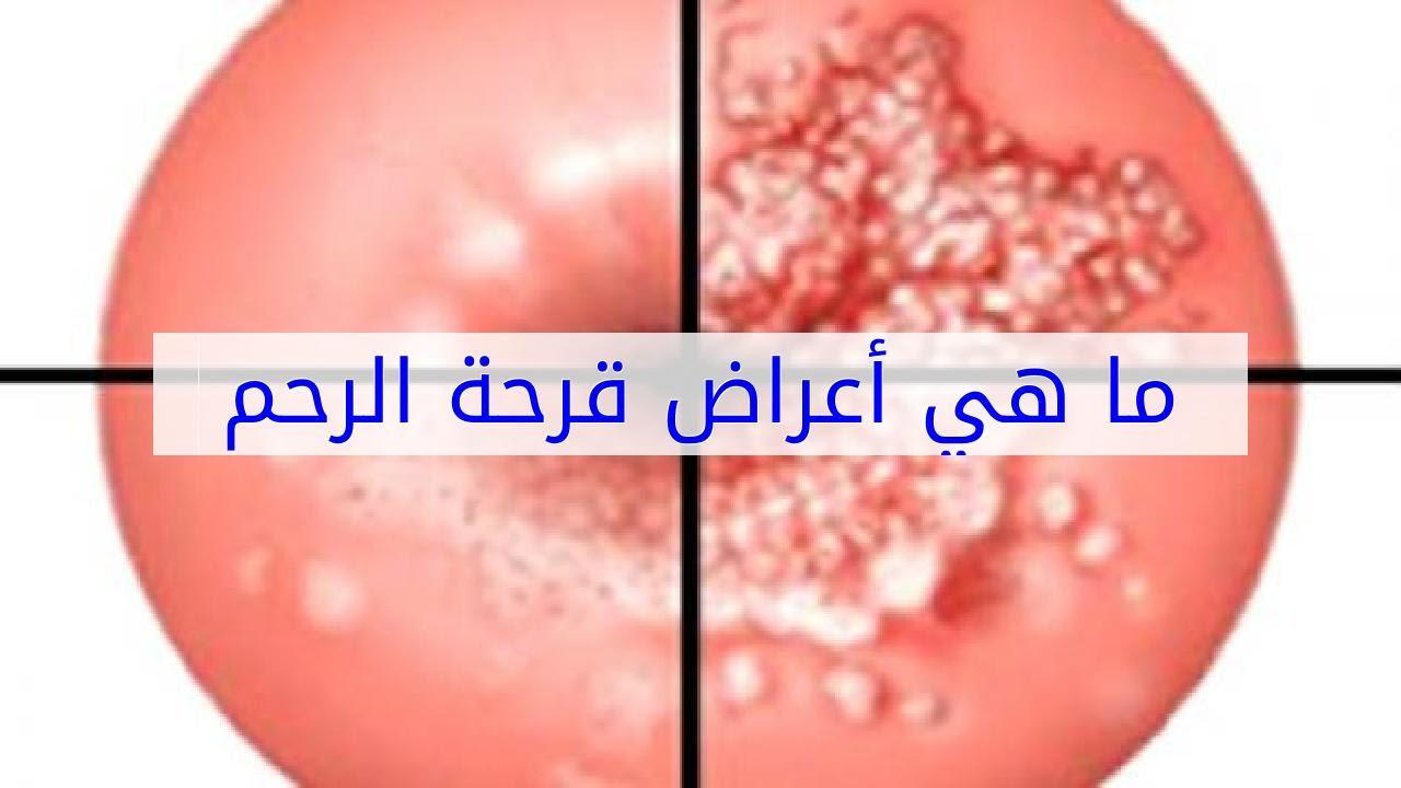 صور علامات قرحة الرحم , اسباب و علاج قرحة الرحم