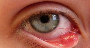 علاج التهاب العين واحمرارها , الوقاية تحى العين