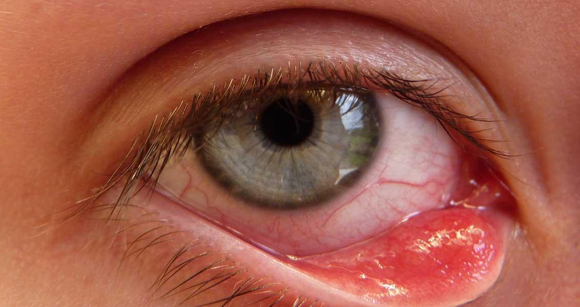 صورة علاج التهاب العين واحمرارها , الوقاية تحى العين