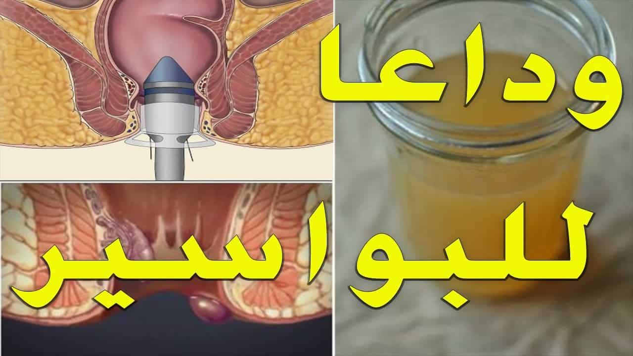 صورة دواء طبيعي للبواسير , طرق علاج رائعه للقضاء علي البواسير