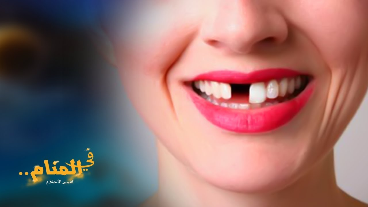 صورة رؤية سقوط الاسنان , لو حلمتي باسنانك بتقع شوفي هيحصلك ايه