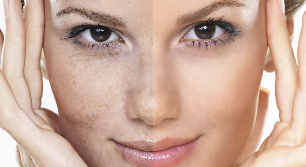 صورة اسباب تصبغات الوجه , لون بشرتك مش متوحد تعالي اعرفي السبب