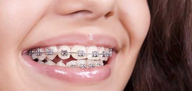 صورة اشكال تقويم الاسنان , اسنان بها تقويم باشكال متعدده ومختلفه صور