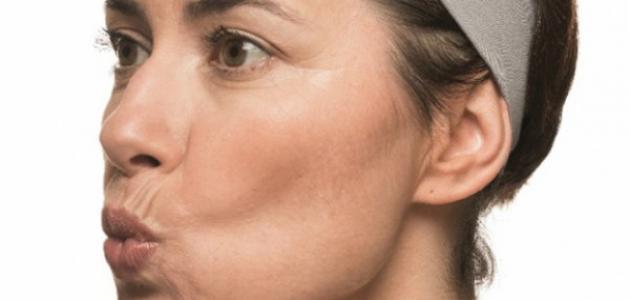 صورة علاجات شد عضله الوجه اسهل طرق علاج شد عضله الوجه كيفيه علاج شد عضلات الوجه , اسهل طرق علاج شد عضله الوجه 721 1