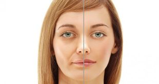 علاجات شد عضله الوجه اسهل طرق علاج شد عضله الوجه كيفيه علاج شد عضلات الوجه , اسهل طرق علاج شد عضله الوجه