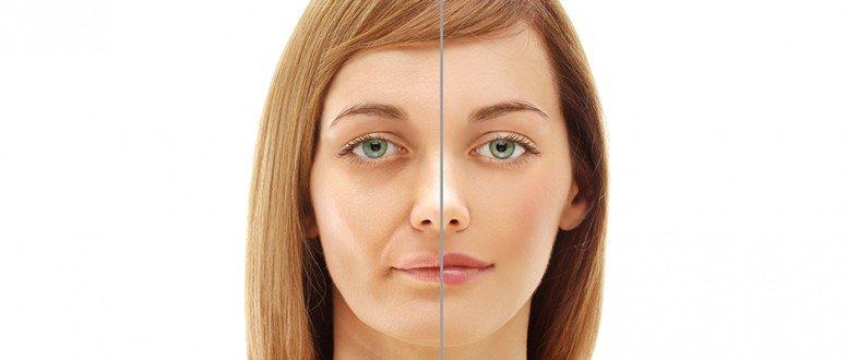 صورة علاجات شد عضله الوجه اسهل طرق علاج شد عضله الوجه كيفيه علاج شد عضلات الوجه , اسهل طرق علاج شد عضله الوجه