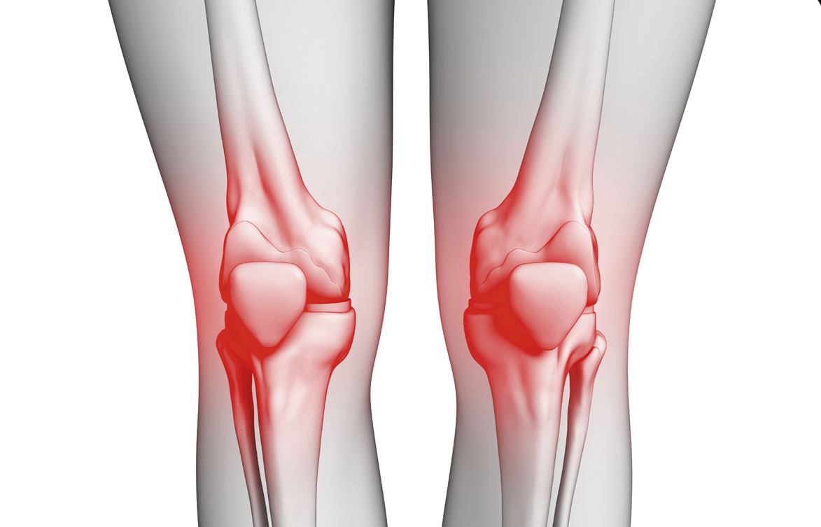 صورة ما هو علاج خشونة الركبة , الطب البديل لعلاج الركبة