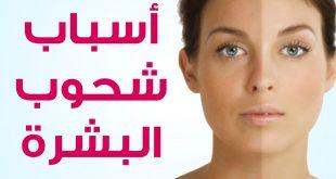 صورة علاج شحوب الوجه , استعيدي اشراقة بشرتك