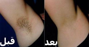 صورة ازالة الشعر نهائيا بالزنجبيل , كيفيه عمل الجسم ليزر بالمنزل