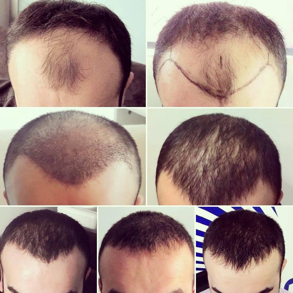 صورة مراحل نمو الشعر بعد الزراعة بالصور , عملية زراعة الشعر و كل ما يخصها بالصور