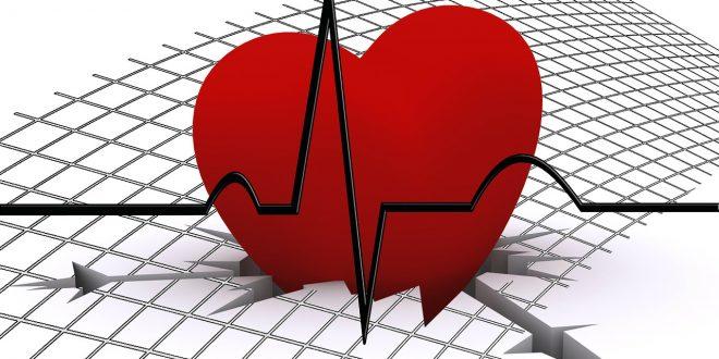 صورة شرح تخطيط القلب , ازاي نقدر نقرا تخطيط القلب