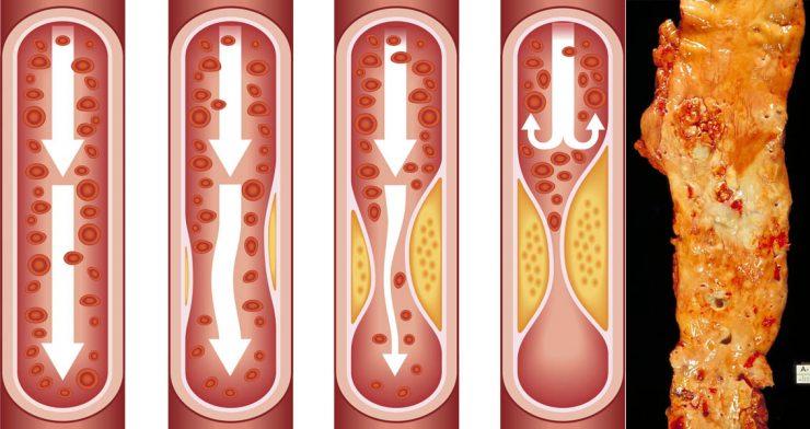 صورة علاج انسداد الشرايين , انسداد وتصلب الشرايين في الجسم
