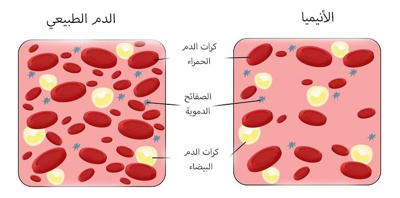 ما هو تحليل Ferritin علاج نقص مستوي الحديد في الجسم قبلات الحياة