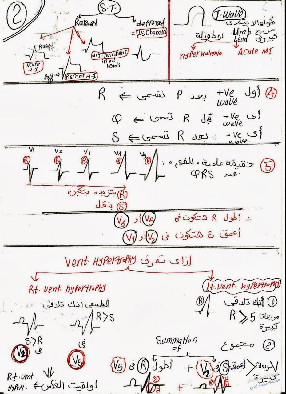 صورة كيفية قراءة رسم القلب , كيف يمكنني ان اقرا تخطيط القلب