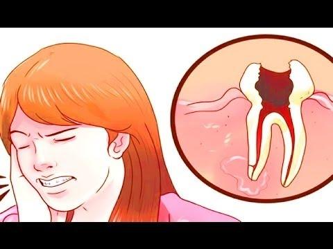 صورة علاج سريع لوجع الاسنان , علاجات منزلية 4941 1