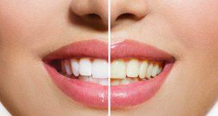 صورة كيفية تنظيف الاسنان الصفراء , بيض اسنانك في بيتك بمكونات طبيعيه