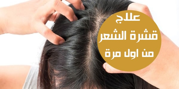 صورة خلطة لقشرة الشعر , تخلصي من القشرة بشكل نهائي و بوصفات طبيعية