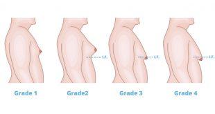 صورة ازالة التثدي عند الرجال , غير شكل جسمك ببساطة