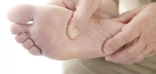 صورة كيفية علاج مسمار القدم , عالج رجلك بدون دكتور في بيتك