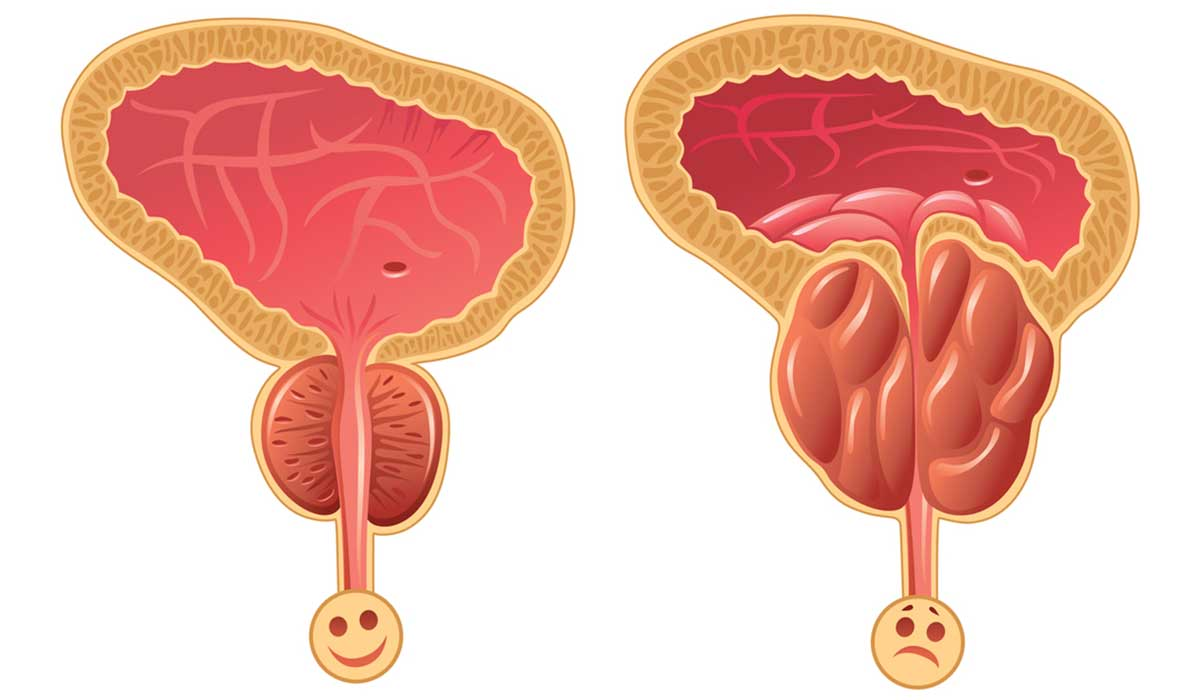 صورة ما هي اعراض تضخم البروستاتا , من اكثر الامراض المنتشره