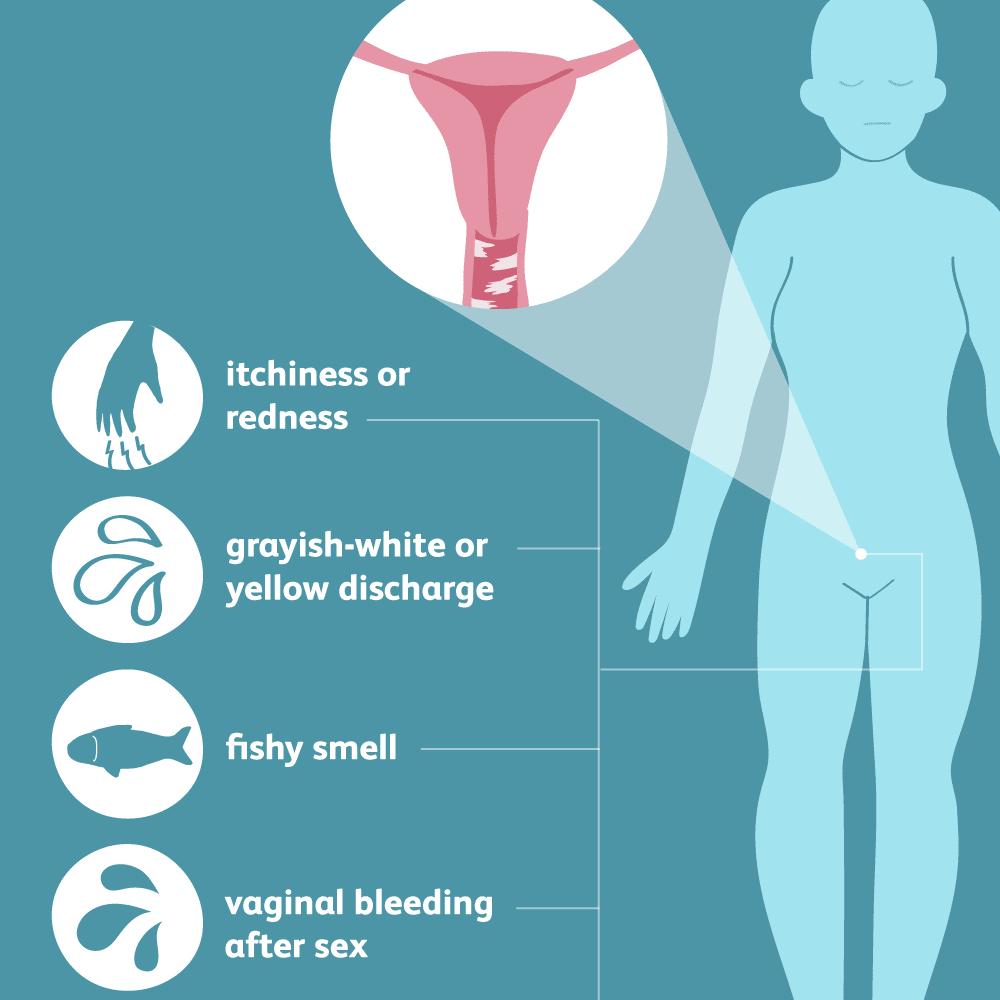 صورة اعراض بكتيريا المهبل , اسباب التهابات المهبل 2792