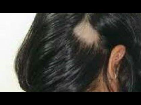 صورة علاج داء الثعلبة , اتخلص من داء الثعلبة بوصفات وعلاجات مضمونة