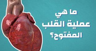 صورة عمليات القلب المفتوح , اخطر الجراحات في العالم
