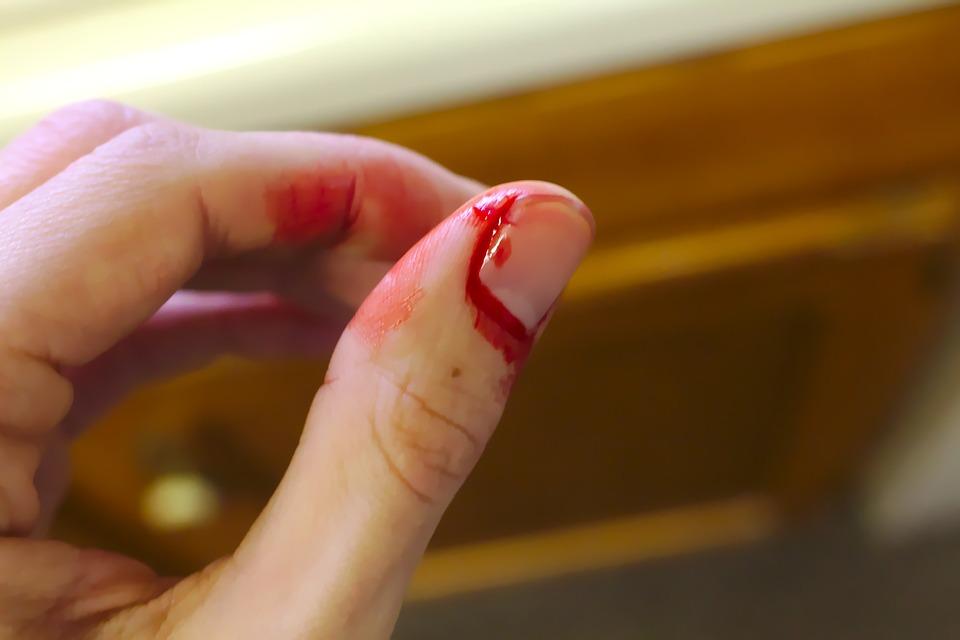 صورة تفسير قطع الاصبع في المنام , قطع الاصبع واختلاف المفسرين فيه