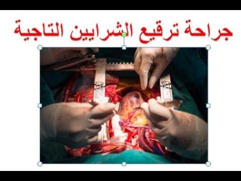 صورة عملية القلب المفتوح ومضاعفاتها , عملية جراحية كبيرة واثارها الجانبية