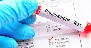 صورة تحليل البروجسترون يظهر الحمل , هتتاكدي و تتابعي و تتطمن من حملك من خلاله 5034 3 310x165