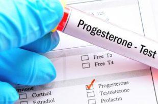 صورة تحليل البروجسترون يظهر الحمل , هتتاكدي و تتابعي و تتطمن من حملك من خلاله