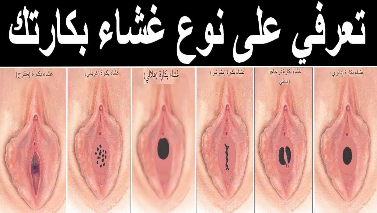 صورة اشكال المهبل الطبيعي , انواع المهبل و شكله