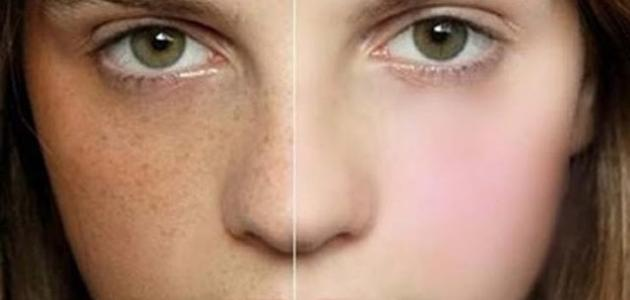 صورة وصفة مجربة لازالة الكلف والبقع البنية من الوجه , طرق سهله للتخلص من الكلف