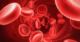 صورة اسباب ضعف الدم , تعرف ما سبب ضعف الدم