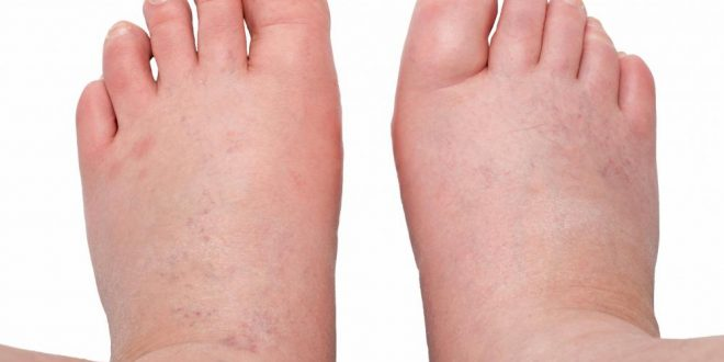 صورة علاج تورم القدمين , العلاج المضمون لتورم القدمين