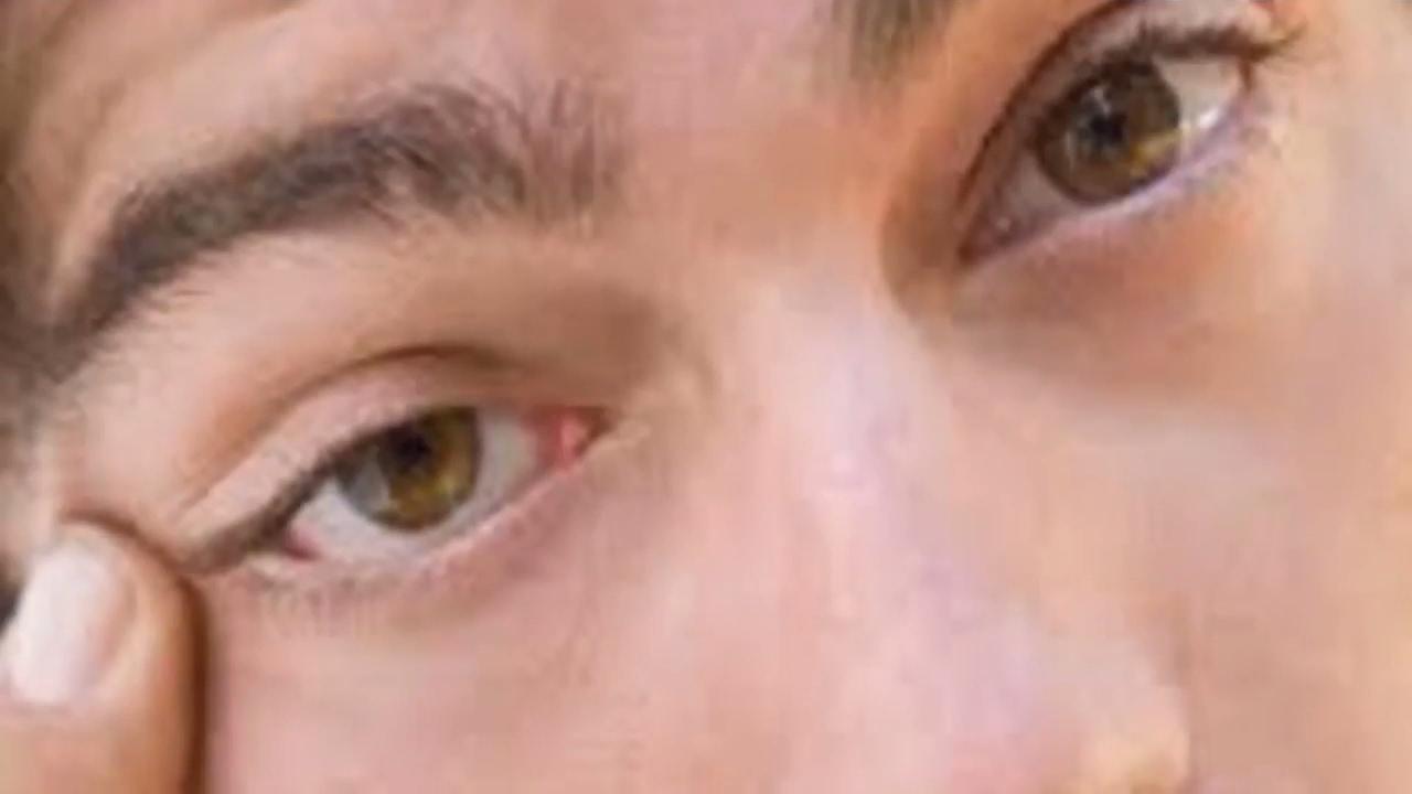 صورة ماهي اسباب رفة العين , هل تعاني من رفه العين اليك اسبابها