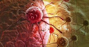 صورة اعراض انتشار السرطان , اعرف ازاي يكون السرطان لديك انتشر
